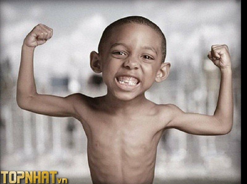 Trẻ còi xương do thiếu canxi